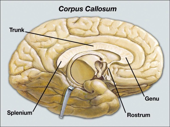 Bouncing Back: Linda Graham; ….Corpus Callosum…. | C PTSD - A Way Out